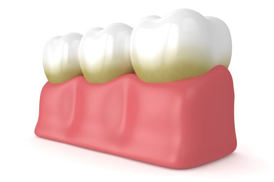 Rendering of teeth with plaque along the gumline, which must be removed with daily brushing and routine dental cleanings